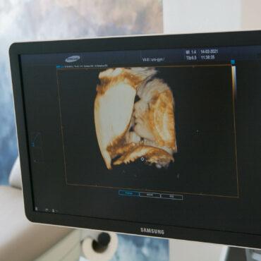 3D/4D ultrazvukový přístroj